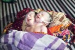 Thousands Throng To Hospital To See Baby Born With Two Heads(Photos)