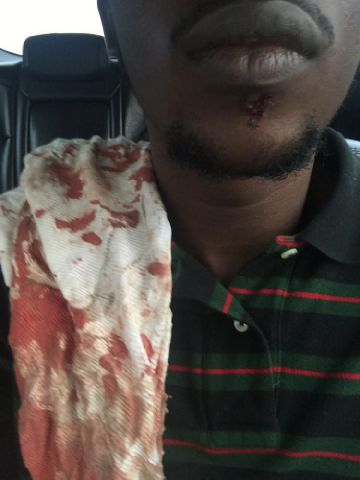 Photo: Dammy Krane's Injured Jaw After Fight With Wizkid At Quilox