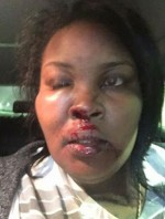 """""""If Someone Shows You Who They Are, Believe Them!""""-Domestic Violence Victim Shares Story To Encourage Others(Photos)"""