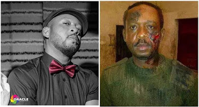 Nigerian Musician Battered By Soldiers For Wearing Camouflage