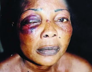 Housewife Loses Eye After Fight With 79 Year Old Mother Inlaw
