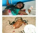 Alhaji Cuts Off Wifes Hand For Infidelity (GRAPHIC PHOTOS INSIDE)