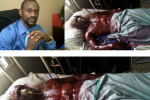 Nollywood Actor Catches Fire On Set, Suffers Severe Burns (Graphic Photos Inside)