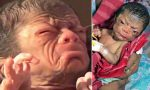 Doctors Stunned After New Born Baby Looks Like 80 Year Old With Wrinkles, And Thick Hair On His Back(Photos)