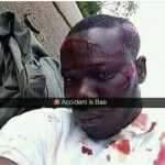 """Accident Is Bae""-  Social Media Addict Who Instead Of Seeking Help Posted Photo Of His Bloodied Self After Accident"