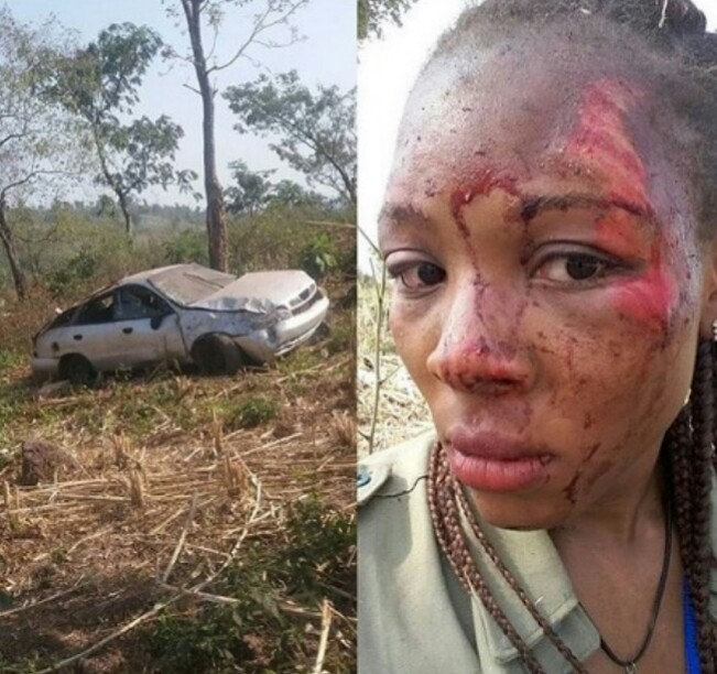 OMG!!! Corper Narrowly Escapes Death, Posts Her Bloody Face Online