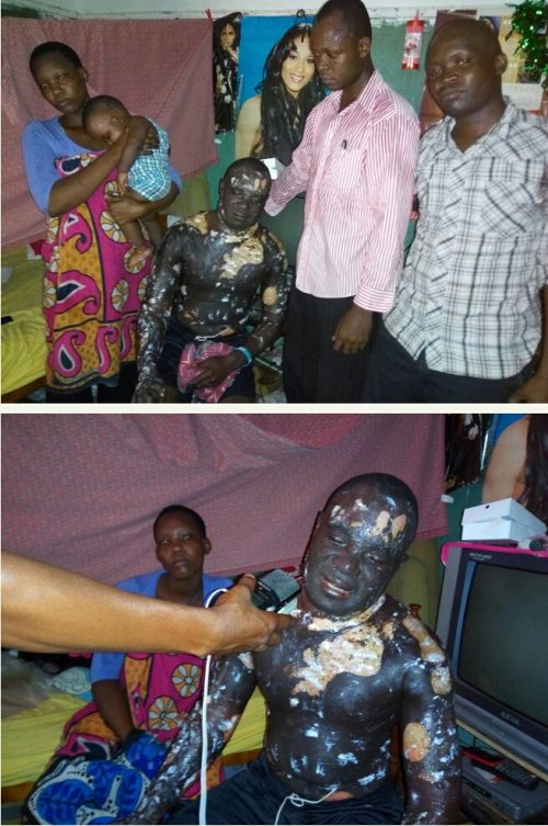 WHAT?! Woman Baths Husband While He Sleeps With Boiling Oil As Punishment For Infidelity (GRAPHIC PHOTOS INSIDE)