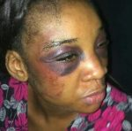 Wickedness:Husband Beats Wife Blue-Black, Stabs Her Private Part Over Cheating Allegations(Graphic Photos)