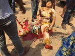 Hit And Run Truck Driver Grinds Woman's Leg To Bits In Asaba [Graphic Photos]