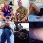 Hospitalized Nollywood Actress Narrates How She Was Brutalized By Power Drunk Soldier