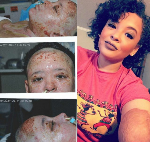 WOW!  Extreme Burn Survivor Shares Amazing Transformation Photo One Year After She Was Left To Die