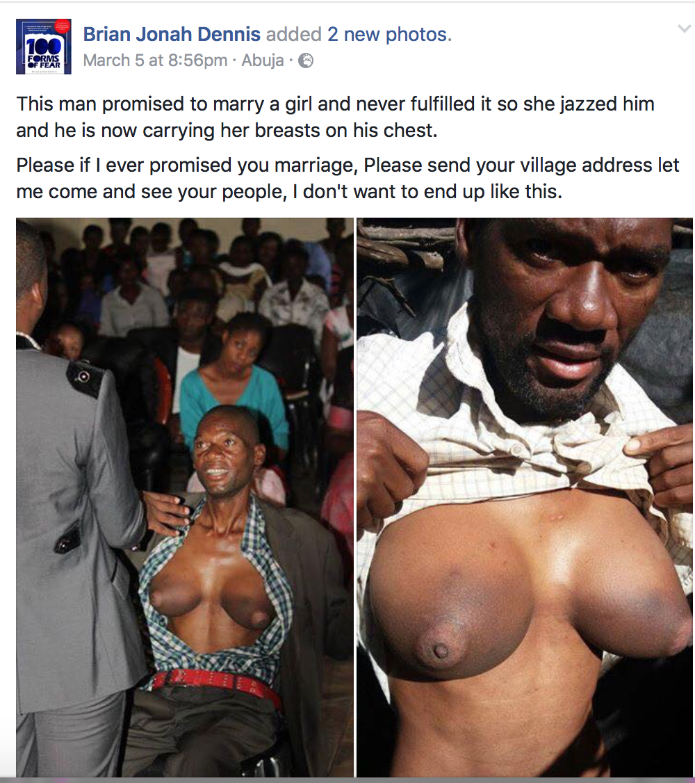 Man Grows Breasts After Dumping Lady He Promised Marriage (Photos)