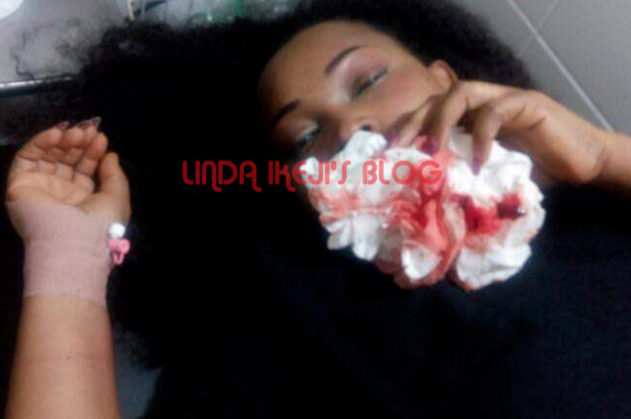 Mercy Aigbe's 7 Year Old Marriage To Lanre Gentry Crashes Over Alleged Battering..Photos Of Her Bloodied Face