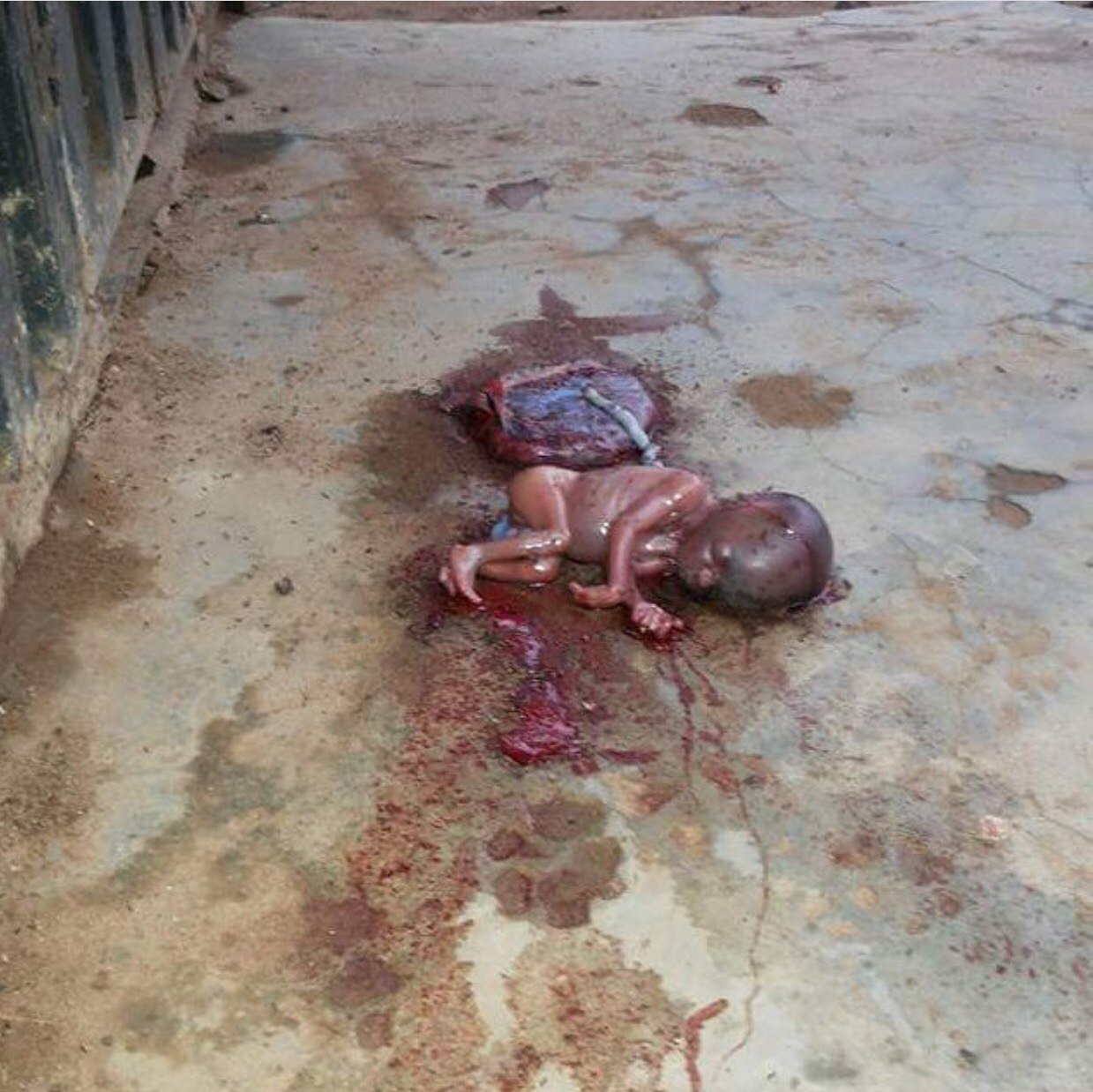 Graphic Photo: Newborn Baby Abandoned Immediately After ...