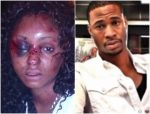 Woman Who Got Beaten Up By Man She Met On Instagram, Shares Story