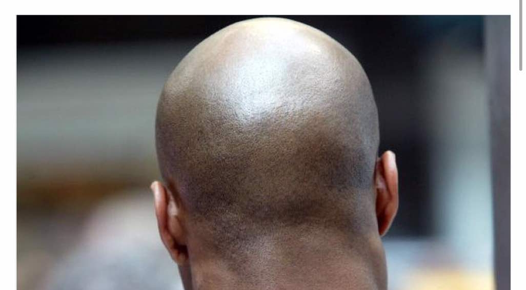 Ritual Killers In Mozambique Target Bald Men As Their Head Is Believed To Contain Gold