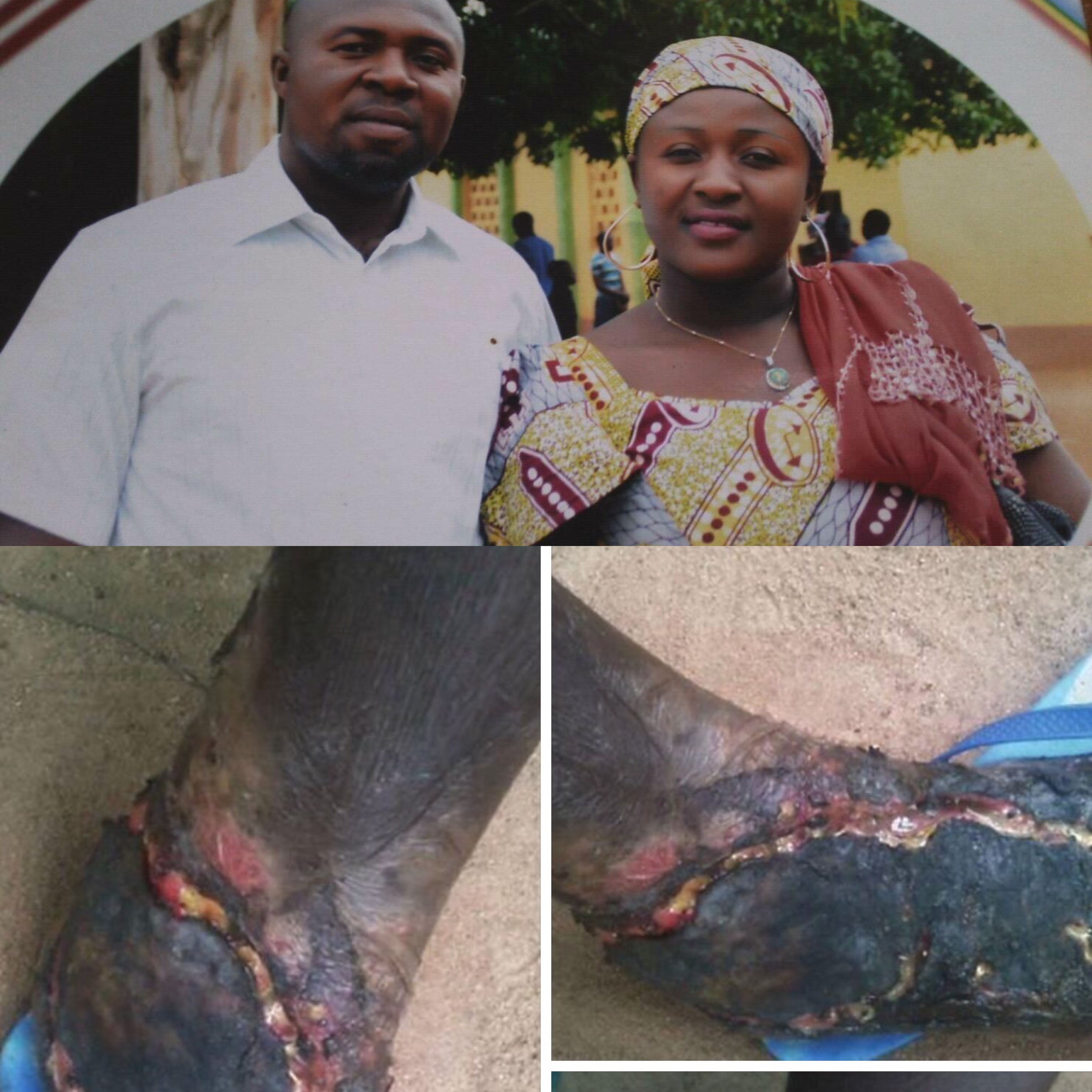 Man Convinced His Wife's Leg Is Rotting Because Of 'Witch Fire' Cries For Help On Facebook