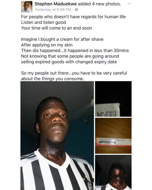 Nigerian Man Suffers Severe Burns After Using Expired Aftershave  With  Manipulated Expiry Date