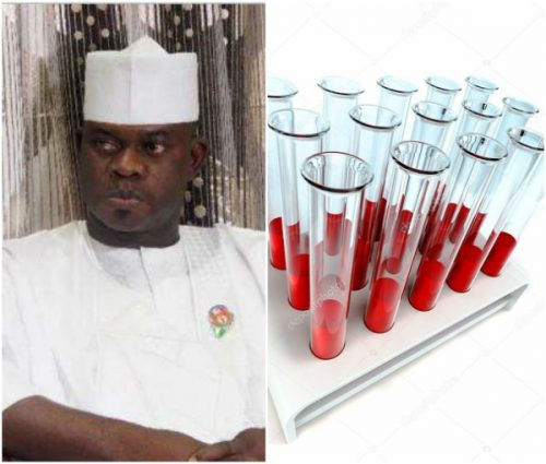 Mysterious Disease That Killed 62 In Kogi Identified