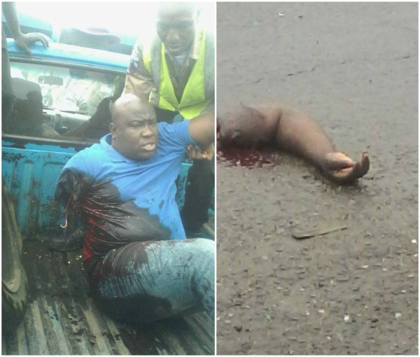Man Loses Arm In Ghastly Accident Along Ibadan Expressway (graphic photos)