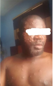 Woman Whose Husband Is Infected With Monkey Pox In Rivers Cries For Help